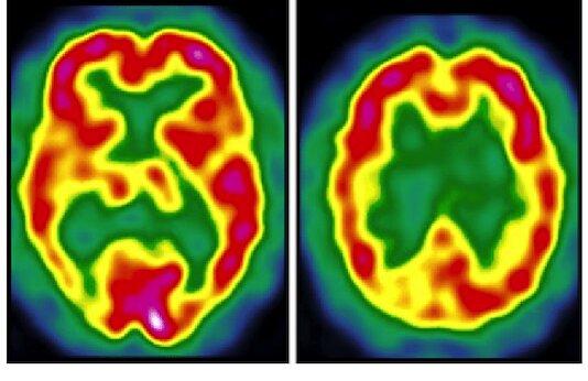 Principaux aspects techniques et pratiques de la SPECT cérébrale. Résultats et indications