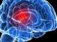 Symptomatologie clinique et diagnostic neuroradiologique des tumeurs intracrâniennes (Suite)