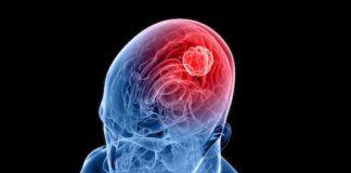Symptomatologie clinique et diagnostic neuroradiologique des tumeurs intracrâniennes