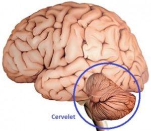 Syndrome cérébelleux