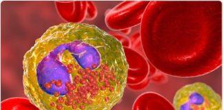 Vascularite, périartérite noueuse, syndrome de Churg et Strauss