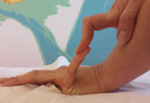 Syndrome d'hypermobilité articulaire bénigne