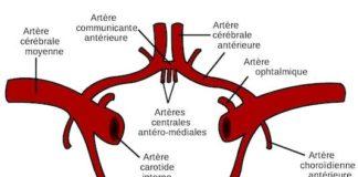 Syndromes anatomocliniques des infarctus du territoire de l'artère carotide