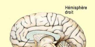 Syndromes de déconnexion interhémisphérique (Suite)