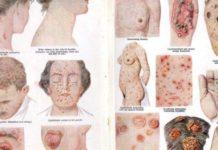 Syphilis laryngée