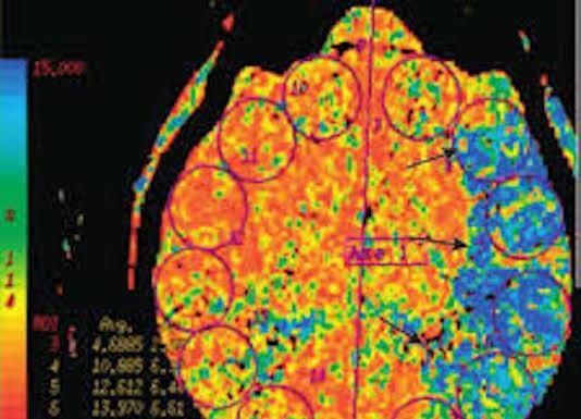 Nouvelles techniques d'imagerie scanner et IRM pour l'étude des vaisseaux cervicoencéphaliques