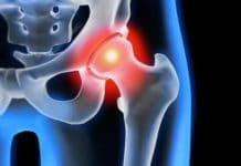 Tendinopathies de hanche