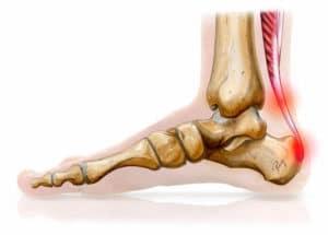 Pathologie du tendon d'Achille : tendinopathies - ruptures - plaies (Suite)