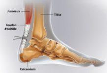 Pathologie du tendon d'Achille : tendinopathies - ruptures - plaies