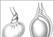 Torsion du cordon spermatique