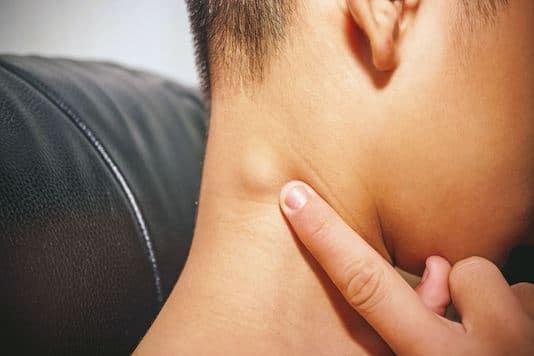 Traitement des lymphangiomes cervicofaciaux