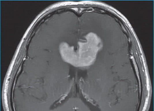 Traitement des lymphomes cérébraux primitifs