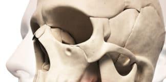 Traumatismes du tiers moyen de la face (Suite)