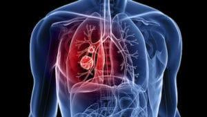 Tumeurs bénignes des bronches, du poumon et du thorax