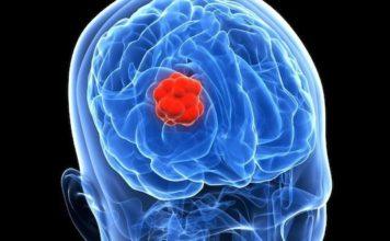 Tumeurs cérébrales et grossesse