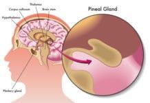 Tumeurs de la région pinéale