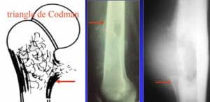 Tumeurs vasculaires des os